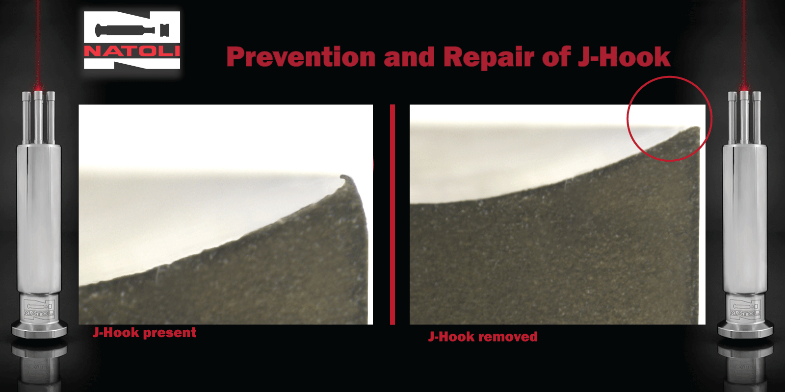 Prevention and Repair of J-Hook